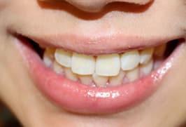 led teeth singapore bio aesthetic medispa after 1