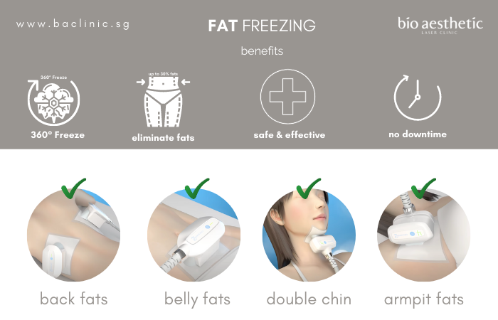 benefits of fat freezing before and after
