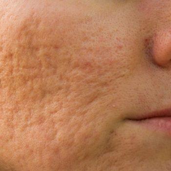 facial treatment acne scars