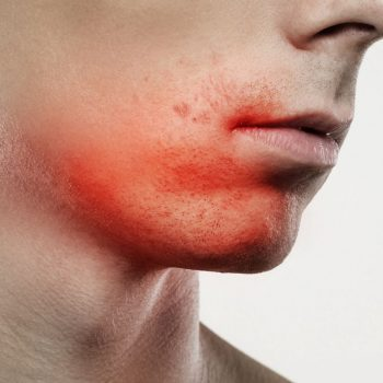 facial treatment sensitve skin