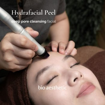 hydrafacial peel - facial treatment singapore