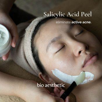 salicylic acid acne facial peel - facial treatment singapore