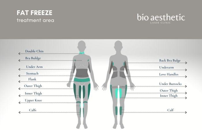 fat freeze treatment area