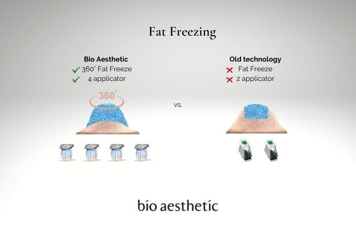 fat freezing singapore - 1