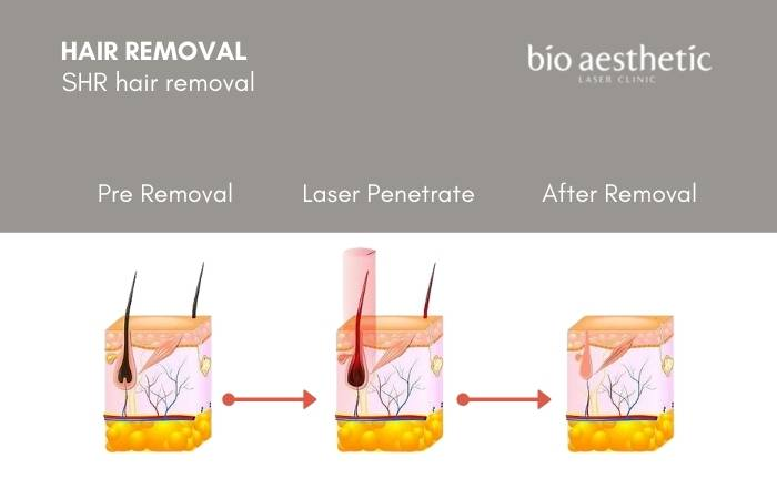 how to shr hair removal work - shr hair removal trial